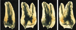 上顎大臼歯墨汁標本