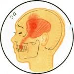 筋・筋膜性歯痛