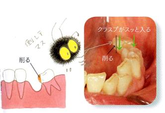 部分入れ歯時の注意2 歯が倒れている