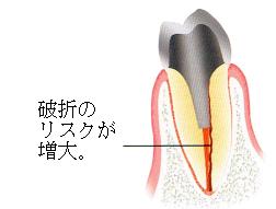 部分入れ歯時の注意4 支えにしたい歯に神経がない