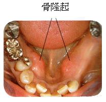 部分入れ歯時の注意5 骨隆起がある