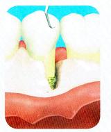歯周外科治療の流れ2