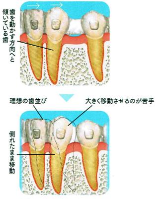 マウスピース矯正は傾いている歯の移動が苦手