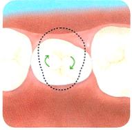 マウスピース矯正は歯の回転が苦手