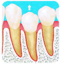 マウスピース矯正は歯を引っ張り出すのが苦手