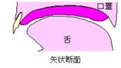口蓋部だけの装置(口蓋床)として製作されたPAPの装着イメージイラスト