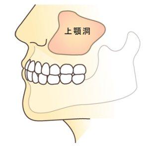 顎の骨に厚みがある正常な状態