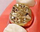 金歯(かぶせ物)