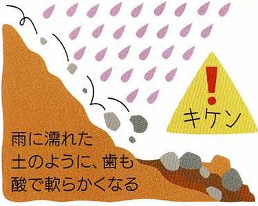 雨に濡れた土のように、歯も酸で軟らかくなる