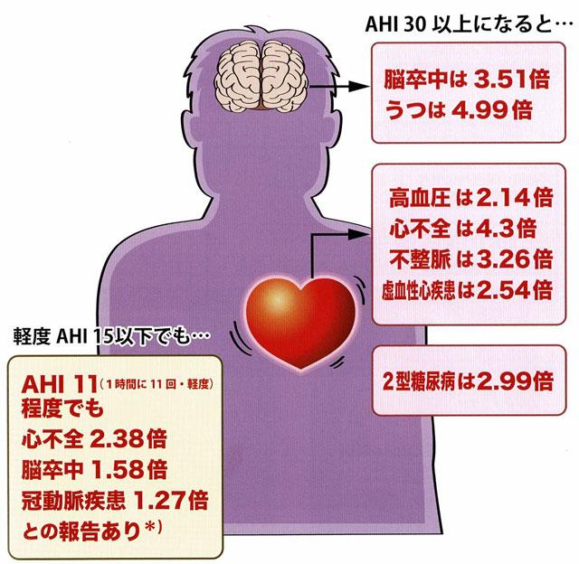 全身への影響(AHIが高いほどリスクが高くなる)