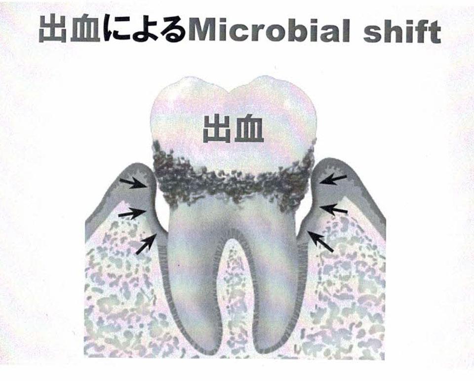 出血により、歯周病は悪化します