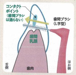 歯間ブラシの動かし方 その1