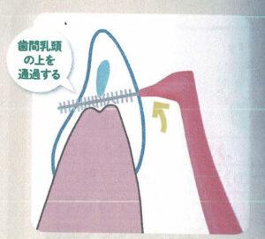 歯間ブラシの動かし方 その3