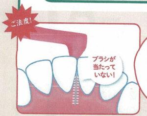 歯間ブラシの動かし方 その6