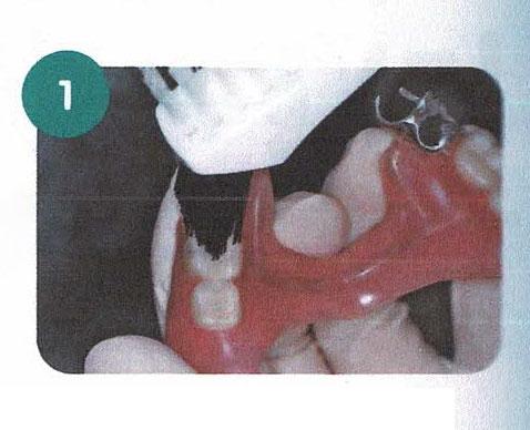 部分入れ歯のお手入れ方法 その1