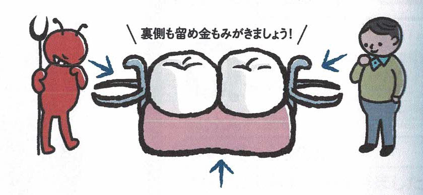 部分入れ歯のお手入れ方法 その5